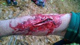 laceration.jpg